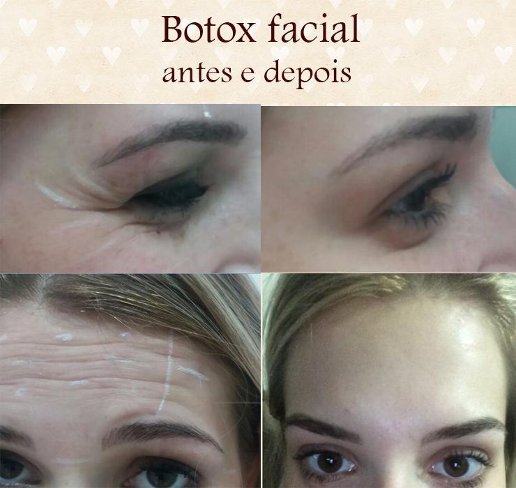 botox facial 25 anos antes e depois brasilia